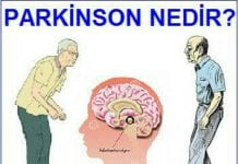 Parkinson Nedir? 2